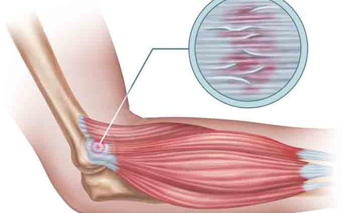 What-You-Should-Know-About-Muscle-Tissue-Breakdown
